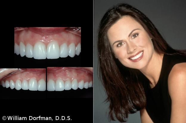 dental-20150504-6